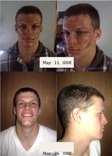How to get Rid of Scars- His Before & After are Pretty Amazing ...